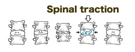 spinal traction reversing degeneration of the spine
