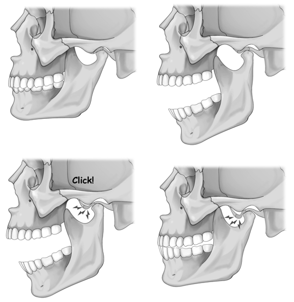 jaw (TMD) clicking for jaw pain TMJ chiropractor