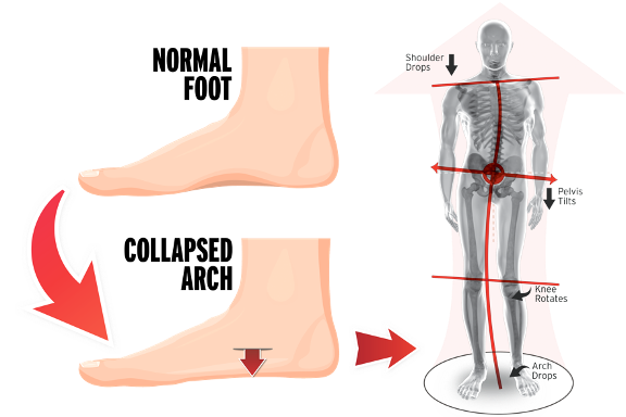 over pronation consequences