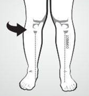 over pronation sign 2 knees in