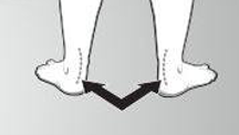 over pronation sign three feet out